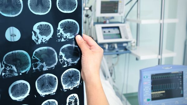 増え続ける不治の病の初期の兆候が明らかに スウェーデンの学者ら - Sputnik 日本