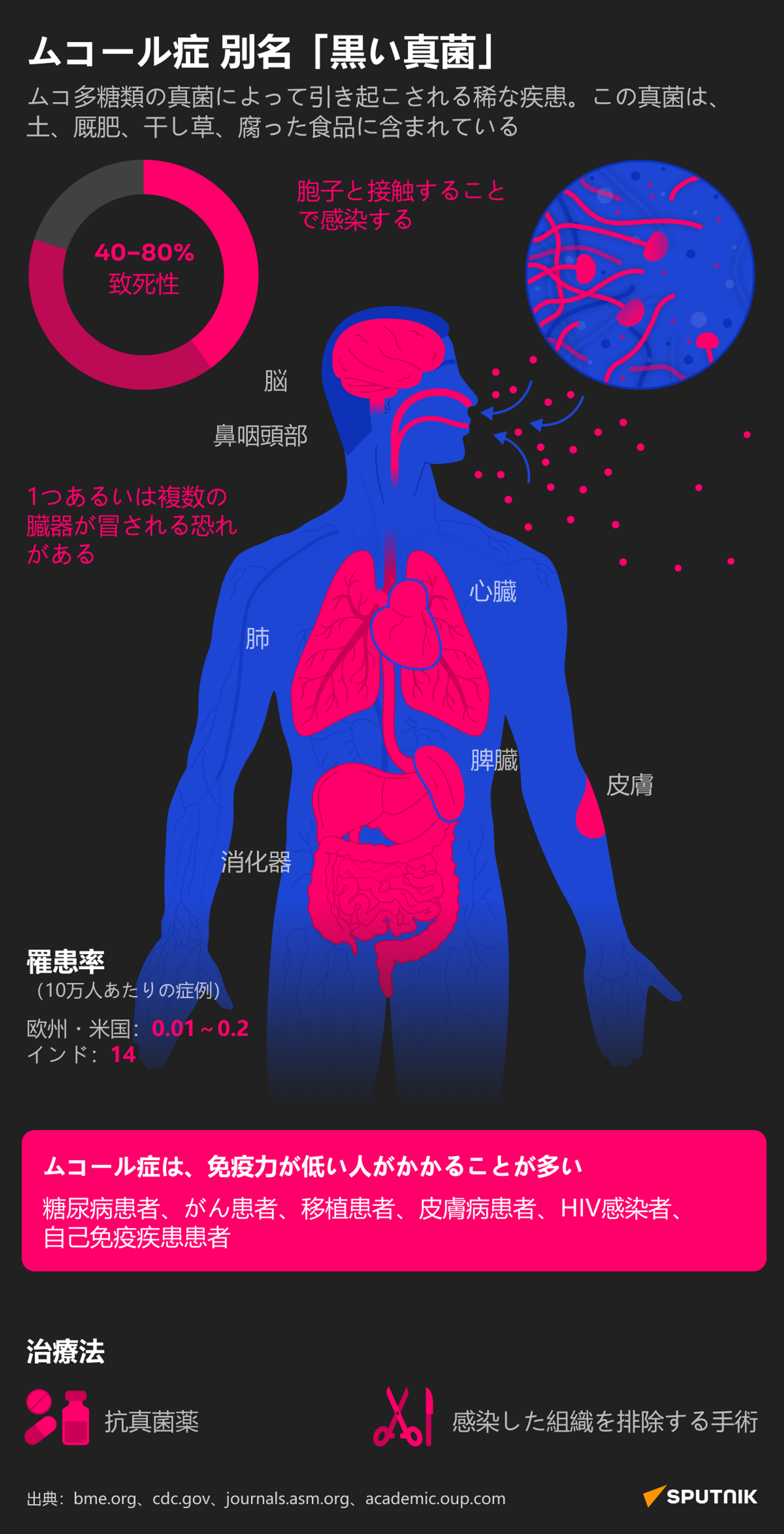 インドで「黒カビ病」拡大 コロナ完治患者の骨組織が壊疽するケースが増加 - Sputnik 日本, 1920, 05.07.2021