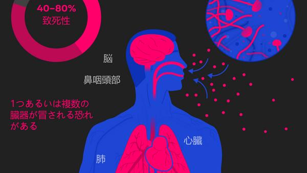 ムコール症 別名「黒い真菌」 - Sputnik 日本