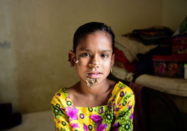 バングラデシュ少女 女性として初めて「樹木人症候群」に? 【動画】