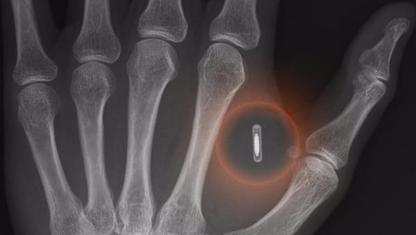 ベルギー企業 自社従業員の皮膚に電子チップを移植 - Sputnik 日本