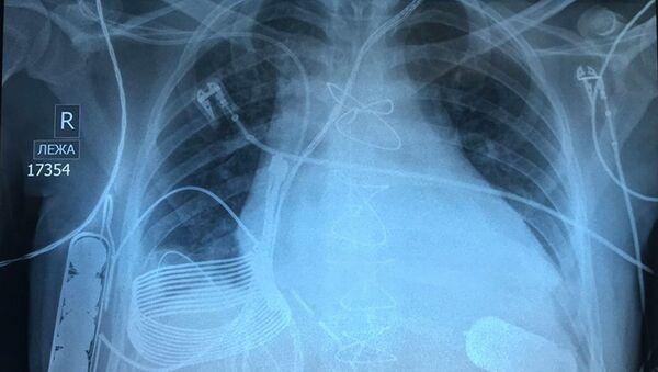 末期の心不全患者に「無線充電式」人工心臓が移植される - Sputnik 日本