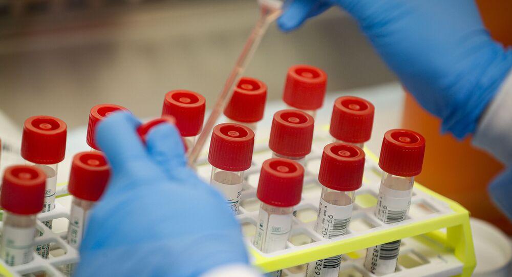 米国と他の13ヶ国 コロナウイルス発生に関するWHO報告に懸念を表明
