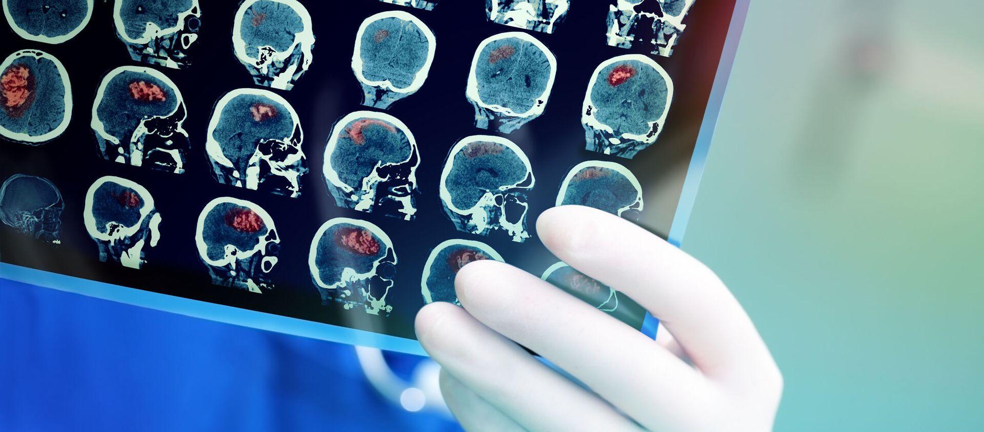 脳のMRI - Sputnik 日本, 1920, 07.06.2021