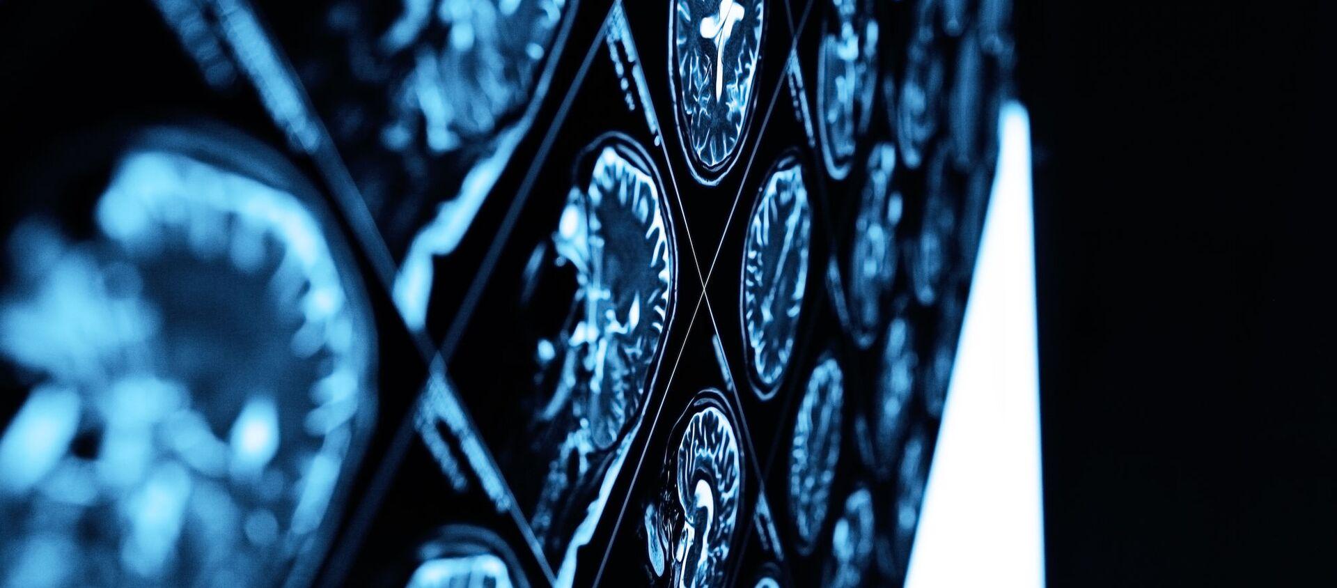 脳のMRI - Sputnik 日本, 1920, 20.04.2021